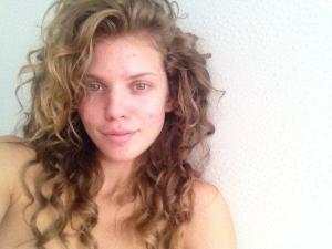 AnnaLynne McCord acne