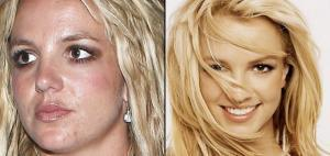 britney spears acne