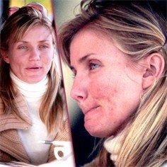 cameron-diaz-acne