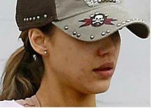 jessica alba acne image