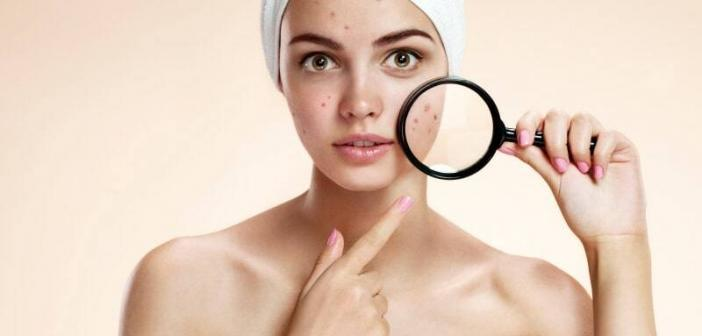 acne pimple scar removal
