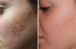 before and after pimple scar removal