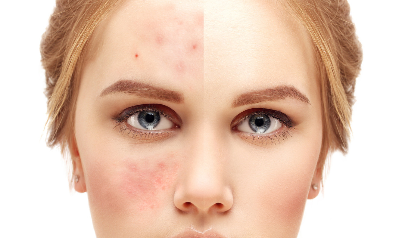 Acne Scar Removal Singapore