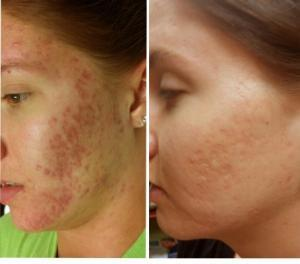 singapore woman before and after acne scar removal
