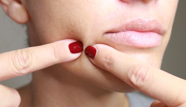 squeezing pimples