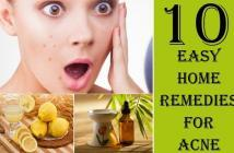 Home Remedies to Help Acne