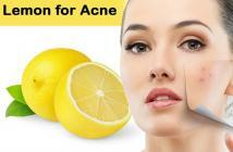 reducing acne scars