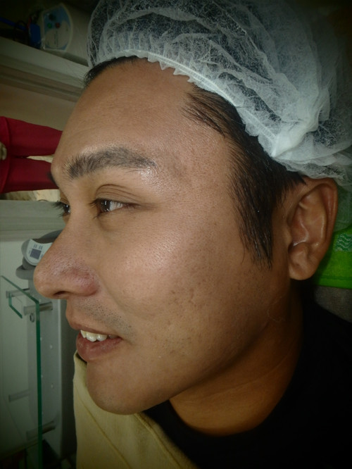 acne-scar-before2