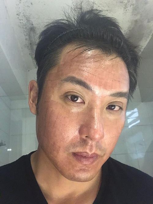 acne-scar-day-1