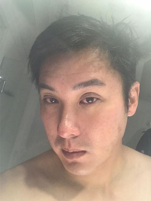 acne-scar-day-2