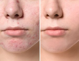 acne breakout before-after