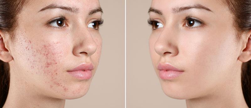 acne-breakout