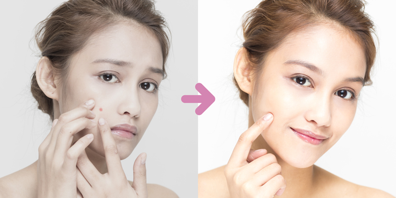 acne treatments singapore