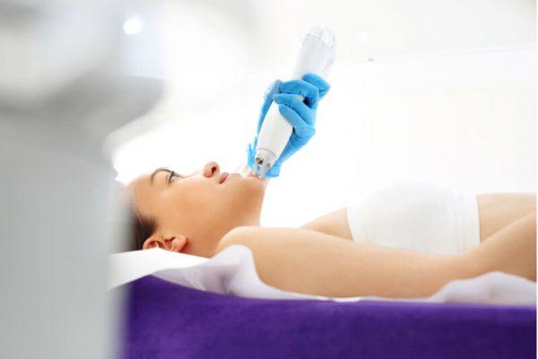 fractional laser acne scar removal