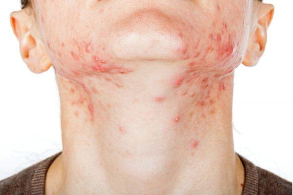 remove acne singapore