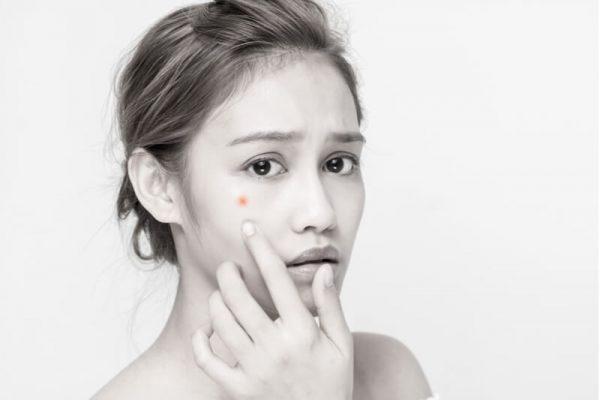 acne facials worsen acne